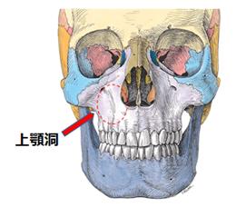 癌 症状 洞 上顎 上顎洞癌とは?進行の種類や症状、検査方法を知ろう!後遺症に注意しよう!
