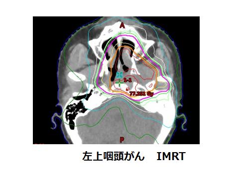 1 中 咽頭 癌 ステージ 各種がんの解説:中咽頭がん がん診療について 日本赤十字社