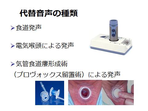 咽頭 が ん 初期 症状 チェック