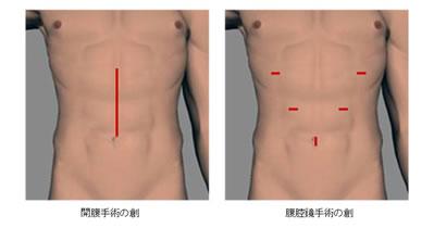 早期胃がんの新しい手術治療(腹腔鏡下手術) | 胃がん|がん研有明病院