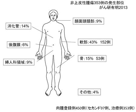 後 腹膜 肉腫